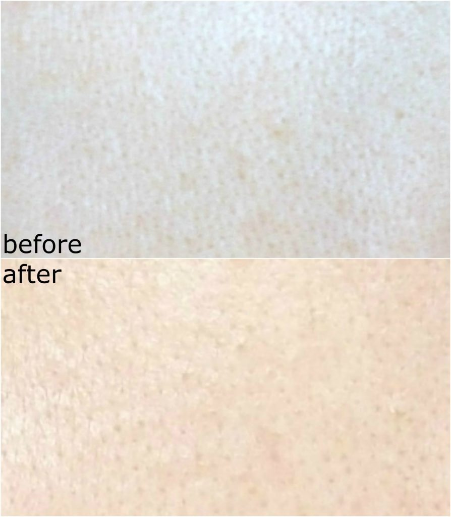 CORSX Advanced Snail 96 Mucin Power Essence, essenza viso alla bava di lumaca. Prima e dopo, trattamento. Texture viso e pori dilatati