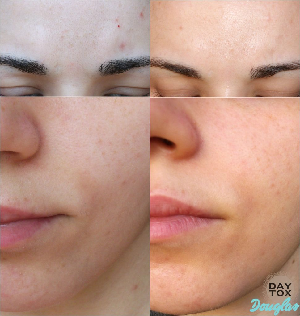 Daytox-by-Douglas-daytox-anti-age-skin-care-program-before-after-result-risultati-Valentina-Chirico copy